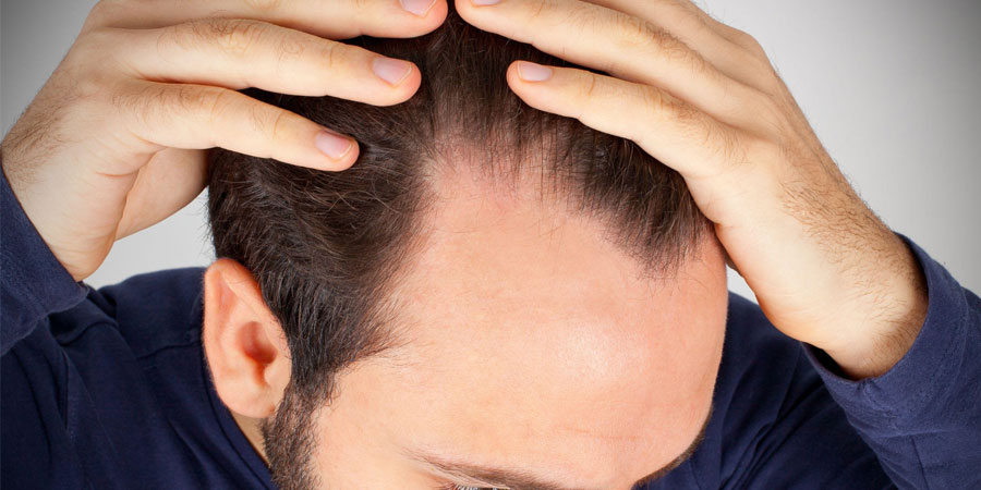Hair Transplant Treatment in Turkey during the Covid-19 Pandemic
