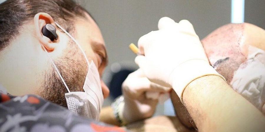 5 Maddede Neden Pandemi Döneminde Saç Ektirmelisiniz?
